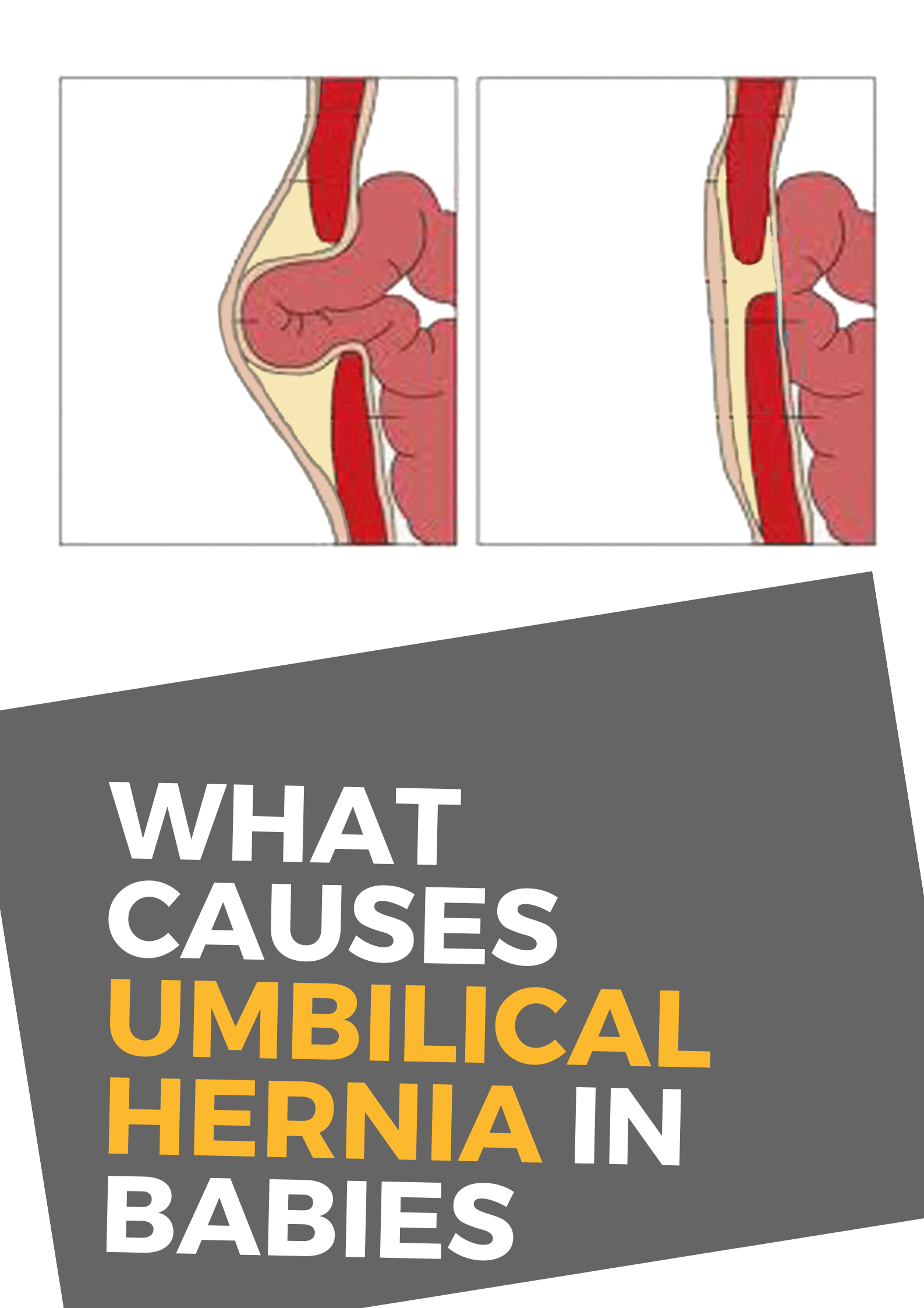 What Causes Umbilical Hernia In Babies